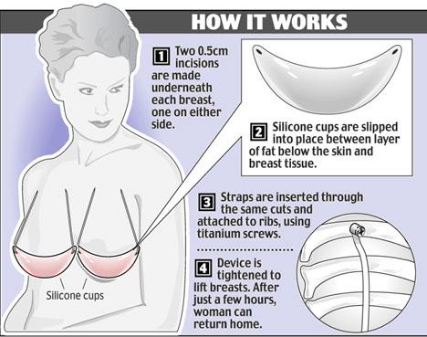 Отзыв о Гормональные таблетки для увеличения груди Bi2Up СразуГормональн